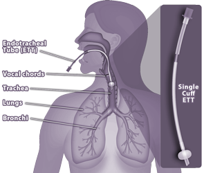 Medical Illustration showing endotracheal tube, lungs and respiratory system